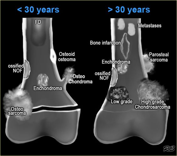 Ossifying fibroma X-ray