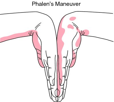 Phalen's maneuver diagram