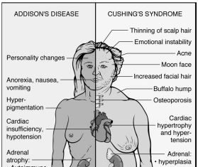 Addison disease sign and symptoms