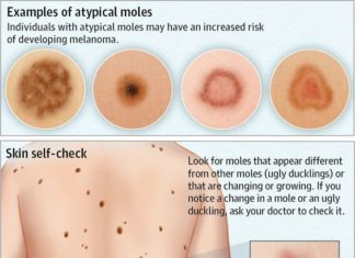 Atypical moles different types diagram