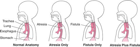 Esophagus atresia and tracheoesophageal fistula diagram