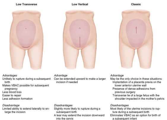 Different types of uterine incisions for cesarean birth diagram