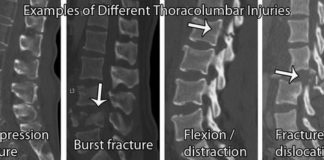 Example of different thoracolumbar injuries X-ray