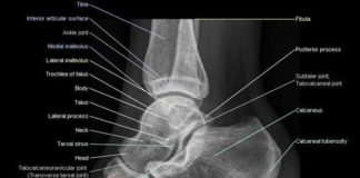 Foot ankle X-ray lateral view