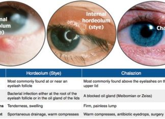 Hordeolum and chalazion diagram