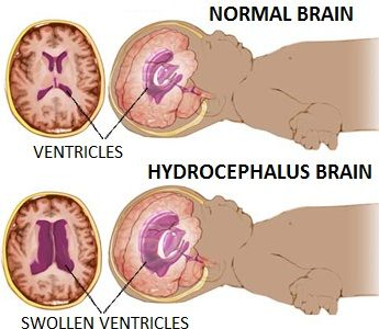 Hydrocephalus brain and normal brain diagram