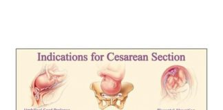 The indication of cesarean section diagram