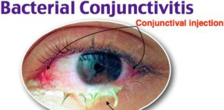Bacterial conjunctivitis diagram