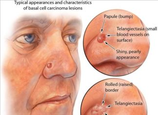 Basal cell carcinoma lesions diagram