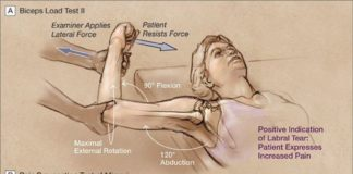 Biceps loadtest, pain provacation test of mimori, internal rotation resistance strength test