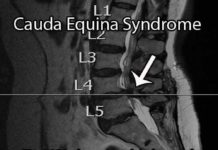 Cauda equina syndrome MRI view