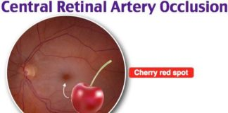 Central retinal artery occlusion diagram