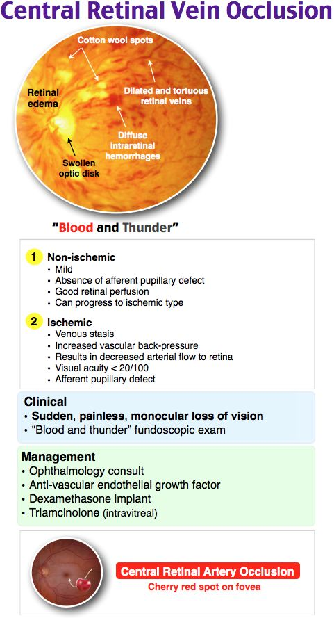 Central retinal vein occlusion diagram