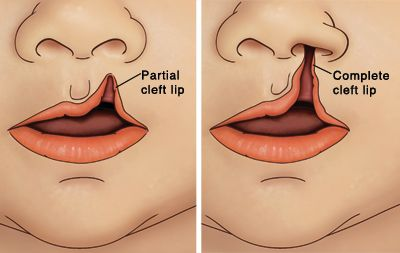 Cleft lip diagram