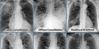 Different types of lung disease X-ray diagram