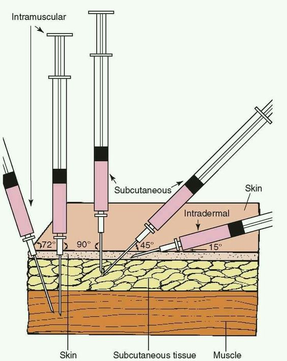 Injection different types diagram