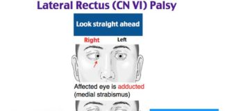 Lateral rectus CN VI palsy diagram