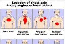 Location of chest pain during angina or heart attack diagram