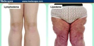 Lymphedema and lipedema diagram