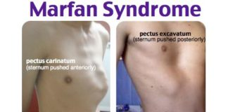 Marfan syndrome diagram