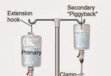 Medical infusion apparatus in hospital