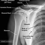 Normal shoulder anterioposterior view