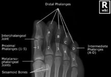 X-ray anatomy of the foot toe