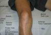 Leg and knee external view