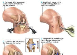 ACL injury treatment diagram