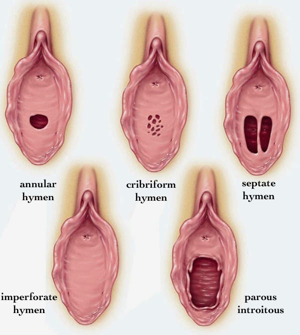 Hymens different types and structure
