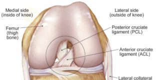 Torn anterior cruciate ligament diagram