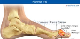 Hammer toe anatomy