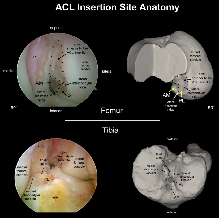Anterior cruciate ligament ACL insertion site anatomy