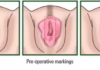 Hymen cosmetic fixation diagram