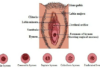 Hymen location and different types