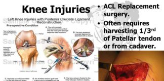 Knee injuries, ACL replacement surgery diagram