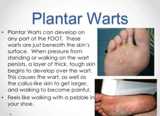 Plantar warts introduction