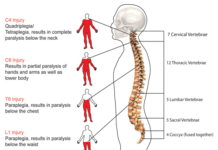 Spinal cord injury diagram
