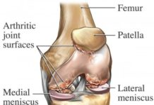 Arthritic joint surfaces of knee anatomy