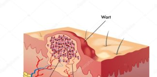 Wart sectional anatomy