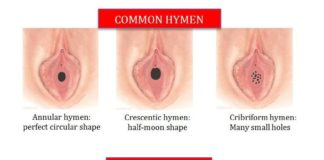 Common hymens and rare hymens types