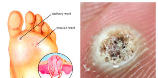 Solitary wart and mosaic wart anatomy