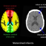 Infarct at ACA MCA watershed area, watershed infarcts
