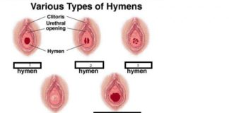 Various types of hymens anatomy