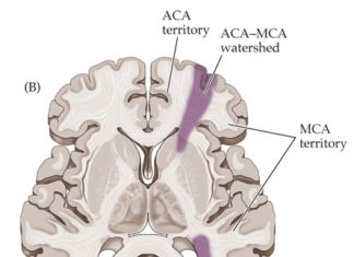 Watershed area in brain