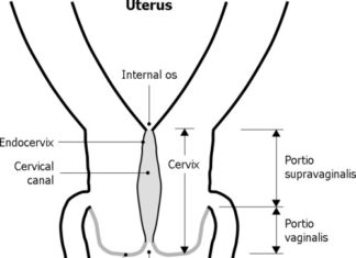 Gross view of cervix sectional side