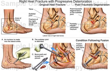 Right heel fracture with progressive deterioration