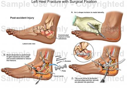 Left heel fracture with surgical fixation