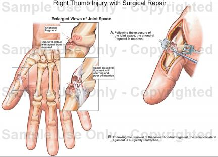 Right thumb injury with surgical repair