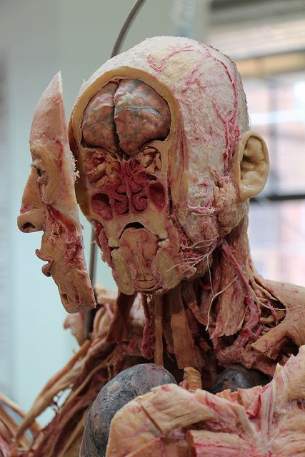 Human cadaver head sectional view